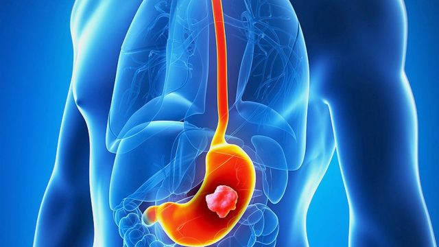 {Taj Medico} Stomach cancer symptoms, diagnosis and treatment